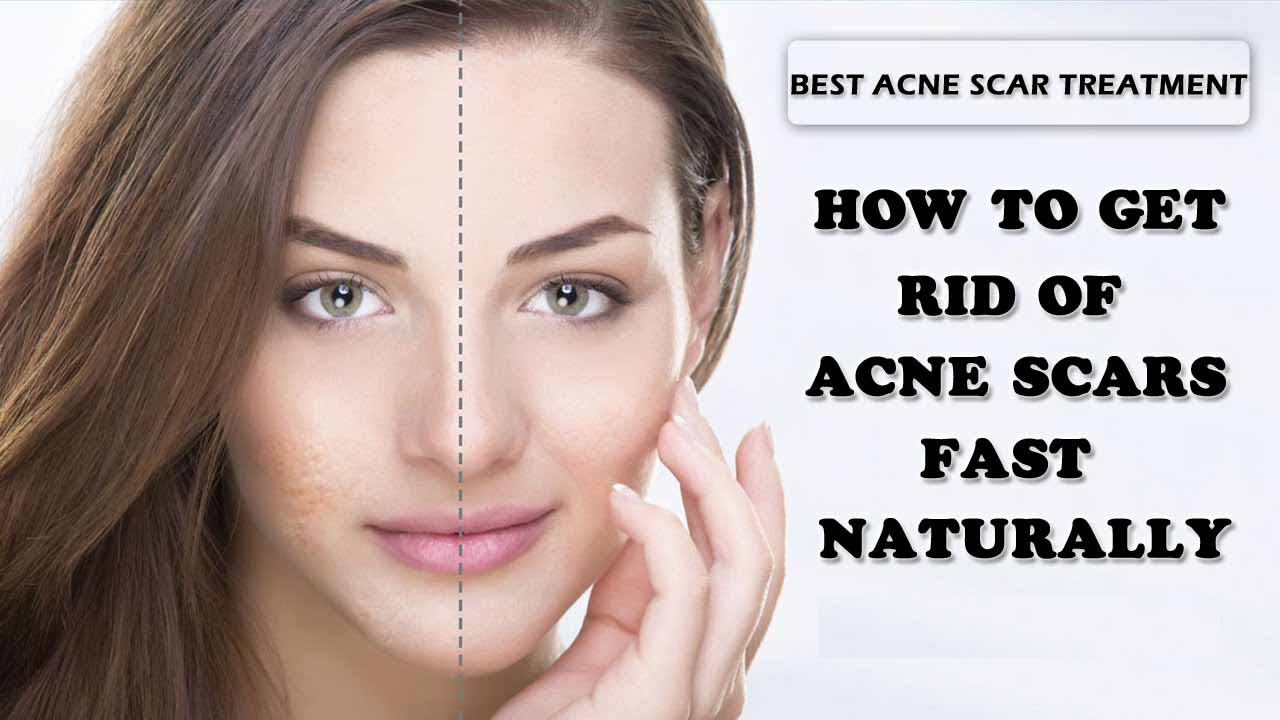 Get Rid Of Acne Fast And Naturally